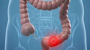 El cáncer de colon constituye el cáncer más frecuente